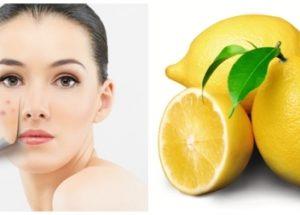 Trị mụn và vết thâm như thế nào để hiệu quả nhất cho da mặt