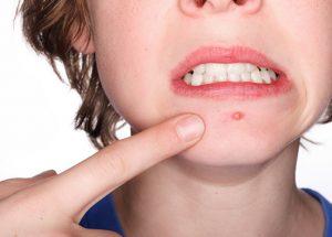 Bị nổi mụn dưới cằm là dấu hiệu của bệnh gì?