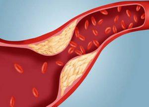 Các yếu tố khiến nồng độ Cholesterol trong máu cao